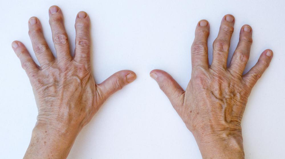 Effects of hand stiffness on job