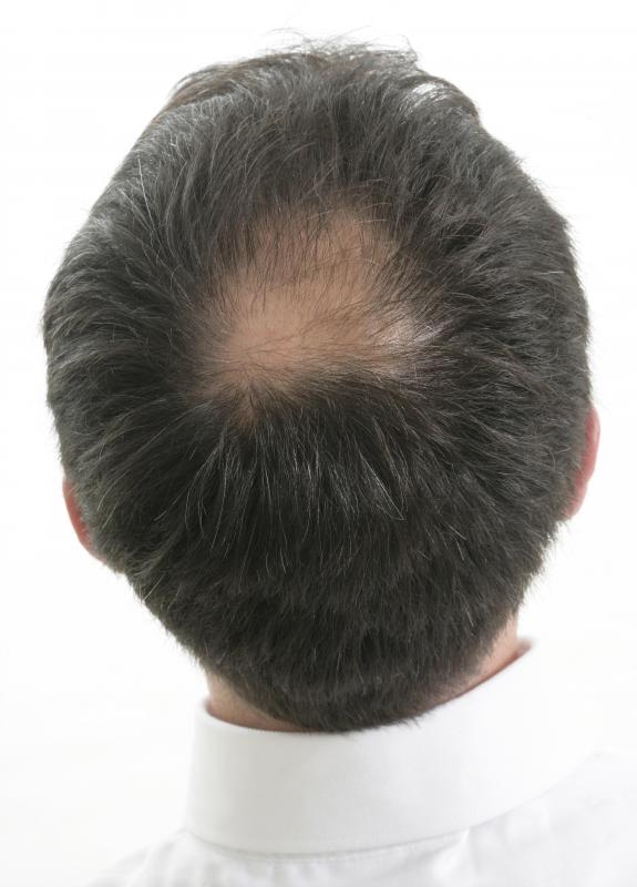Image Gallery hair loss and spots