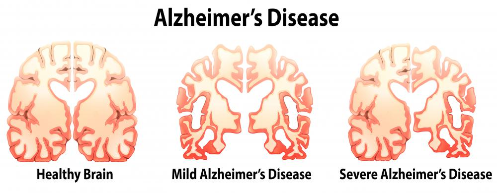 New mind enhancing drugs image 1
