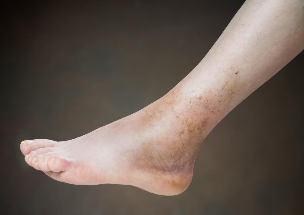Best Remedies for Dark Skin Around the Ankles - Best