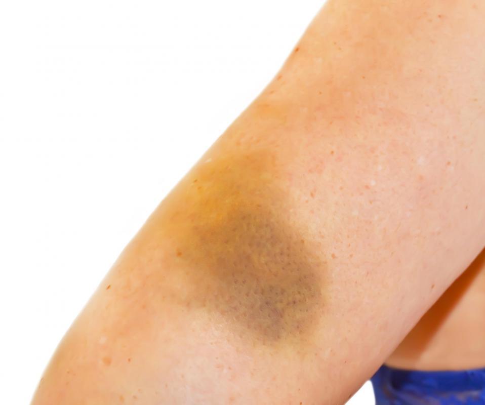 Kết quả hình ảnh cho Heal bruises