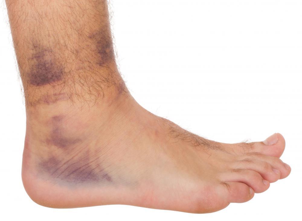 Beating osteoarthritis knee pain    harvard health blog