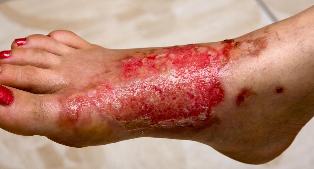 acidic-burns.tumblr.com | Website review voor acidic-burns ...