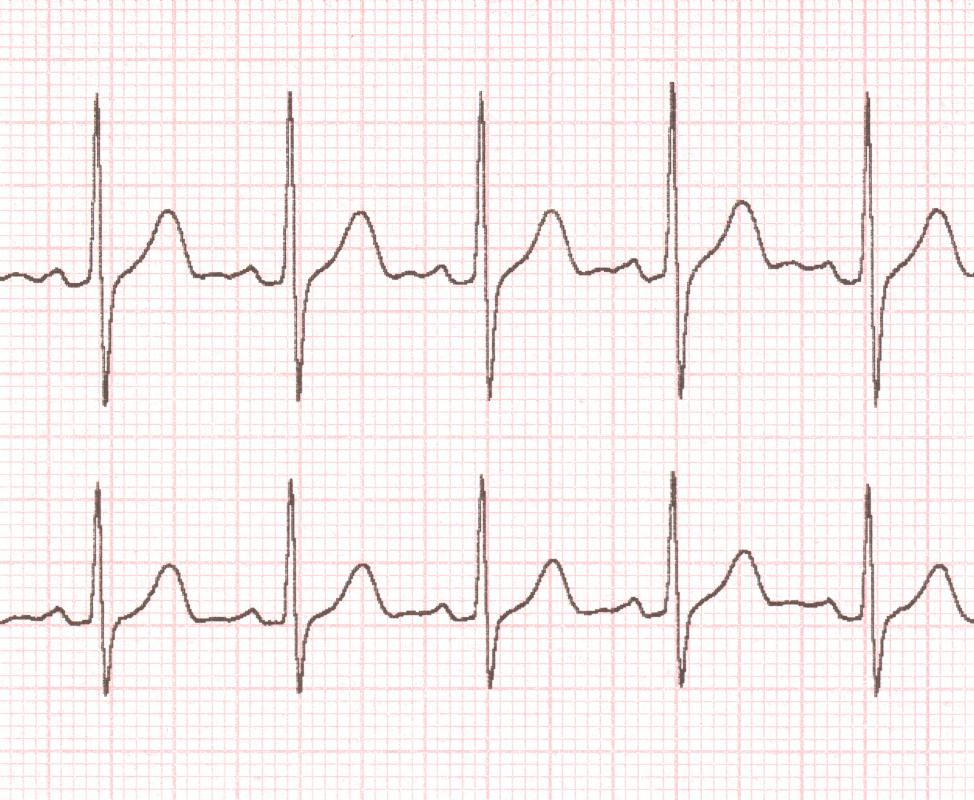What Are the Different Types of EKG Leads? (with pictures)