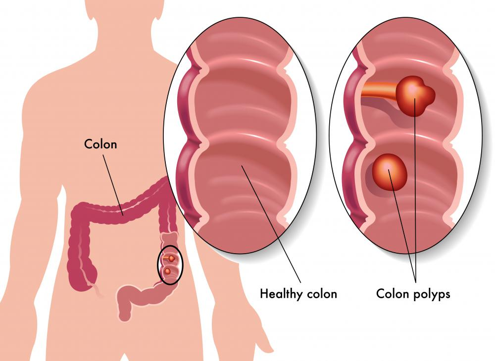 What Are The Most Common Causes Of Large Intestine Pain
