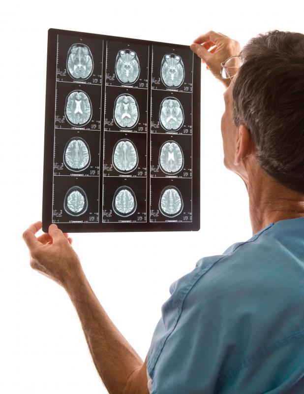 Infarction Brain Stem What is a Brain Stem Infarct