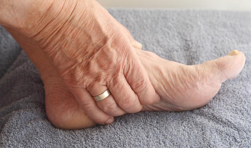 Отчего бывает судорога в ногах и как ее лечить