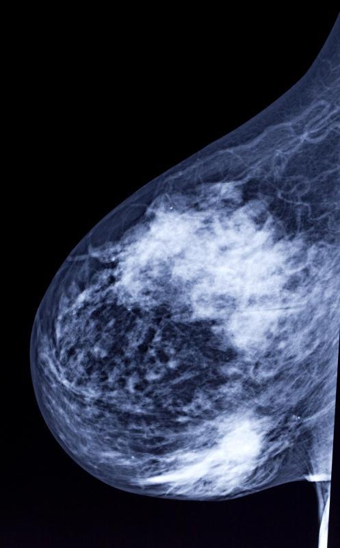 mammogram machine images