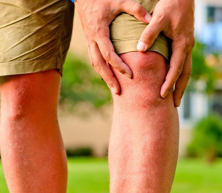 tape runners knee