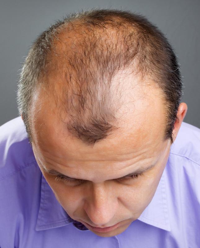 how do i choose the best hair spray for thinning hair?