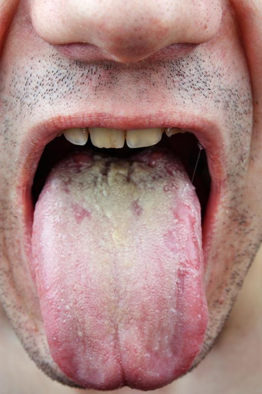 Penis Eğriliği Peyronie Hastalığı Penis Eğriliği