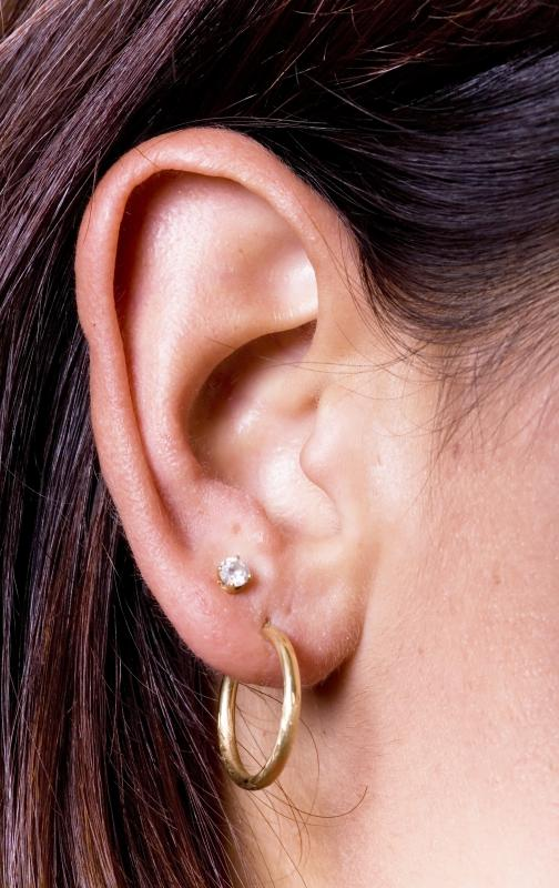 Earrings Can Cause An Earlobe P