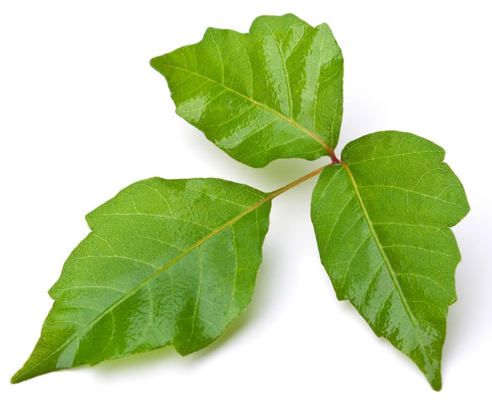 severe-poison-ivy-rash
