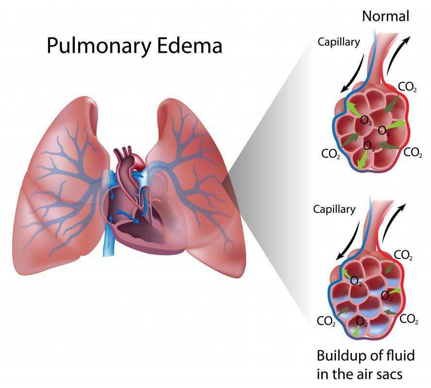 Edema vs oedema
