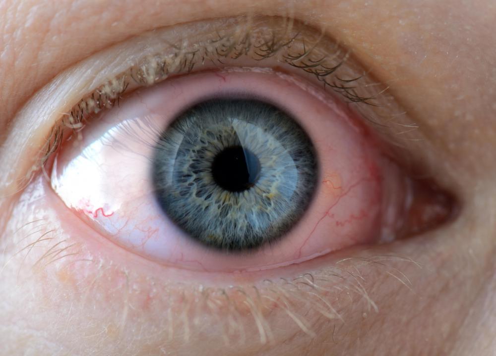 Chlamydia In The Eye a Chlamydia Eye Infection