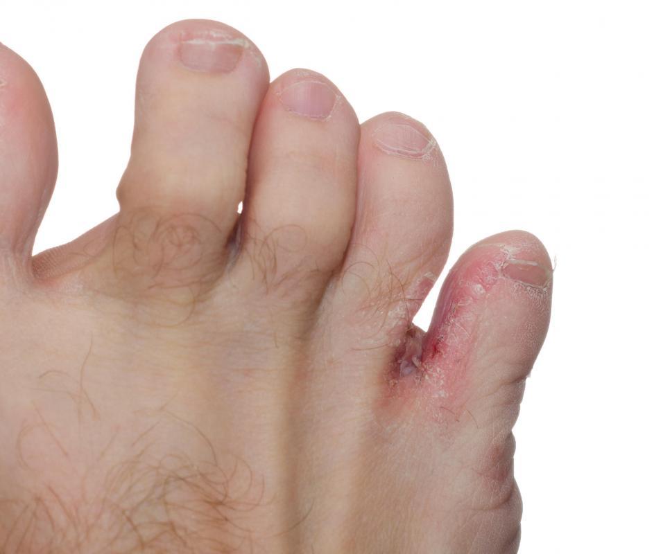 Как лечить экзему на нога в домашних условиях