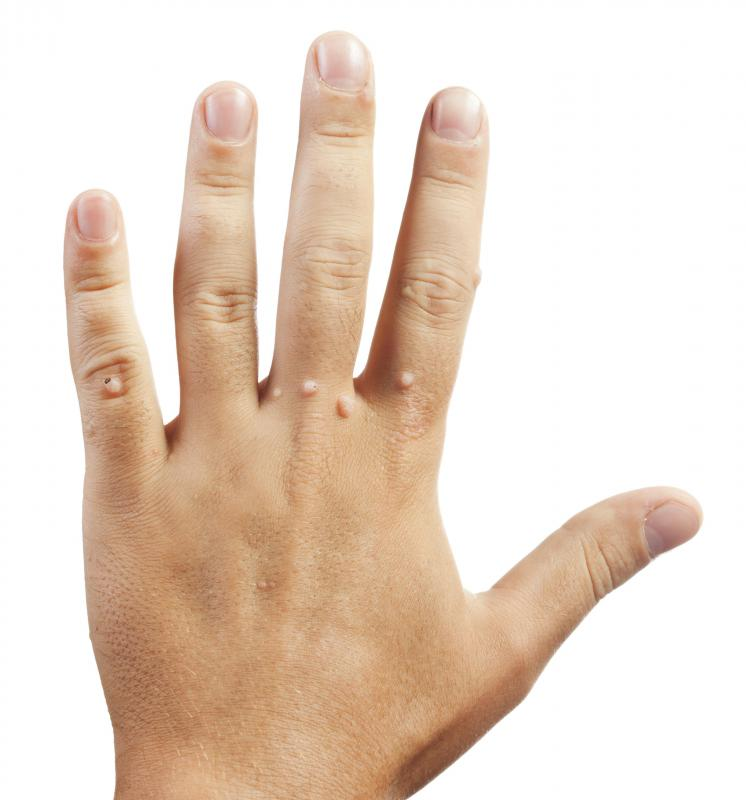 Warts fingers treatment, What are Warts? (Verruca Vulgaris) papilloma virus trasmissione piscina