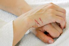 Getting scratched by a cat could lead to blistering if the animal has the bacteria that causes cat scratch disease.