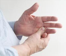 Myxoid cysts often appear on fingers.