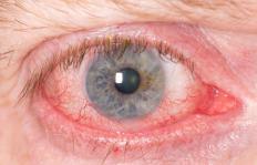 Symptoms of eye parasites may include eye redness.