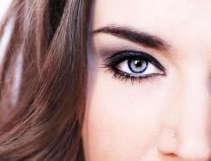 Partial or total eyebrow hair loss may be referred to as eyebrow alopecia.