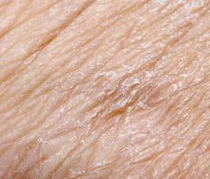 Alkaline water can help relieve dry skin.