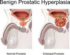 Prostate orgasms may help treat symptoms of benign prostatic hyperplasia.