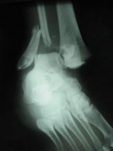Fractures can cause bone marrow edema.