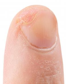 Hospitals have strict protocols for keeping wound sites clean and avoiding exposure to staph.