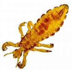 A head louse.