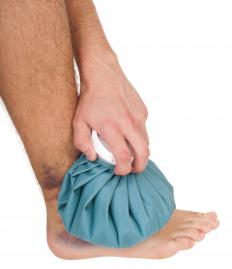 Ice therapy may help treat an injury to the abductor hallucis.
