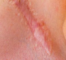 Scar tissue.