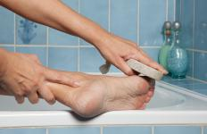 Pumice stones help relieve cracked skin.